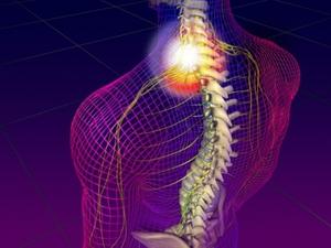 nyaki nyaki osteochondrozis géle)