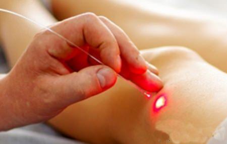 a kézízületek fájdalmának oka - kezelés