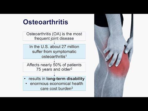 a láb osteoarthritisének orvosi kezelése)