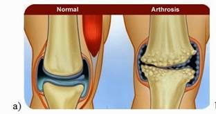 artrózis kezelése a