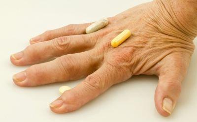 mely ízületeket érinti a rheumatoid arthritis