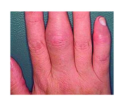 fájdalom és duzzanat és az ujjak ízületei