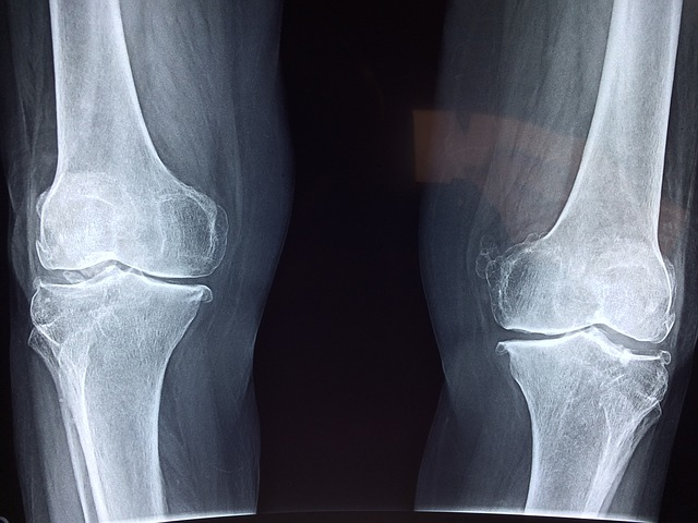 annál jobban érzésteleníteni a térdízület artrózisát