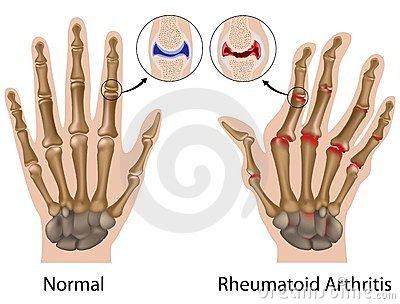 a kéz ízületi károsodása