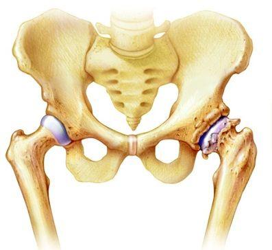 ízületi fájdalom a csípőízület elülső felülete