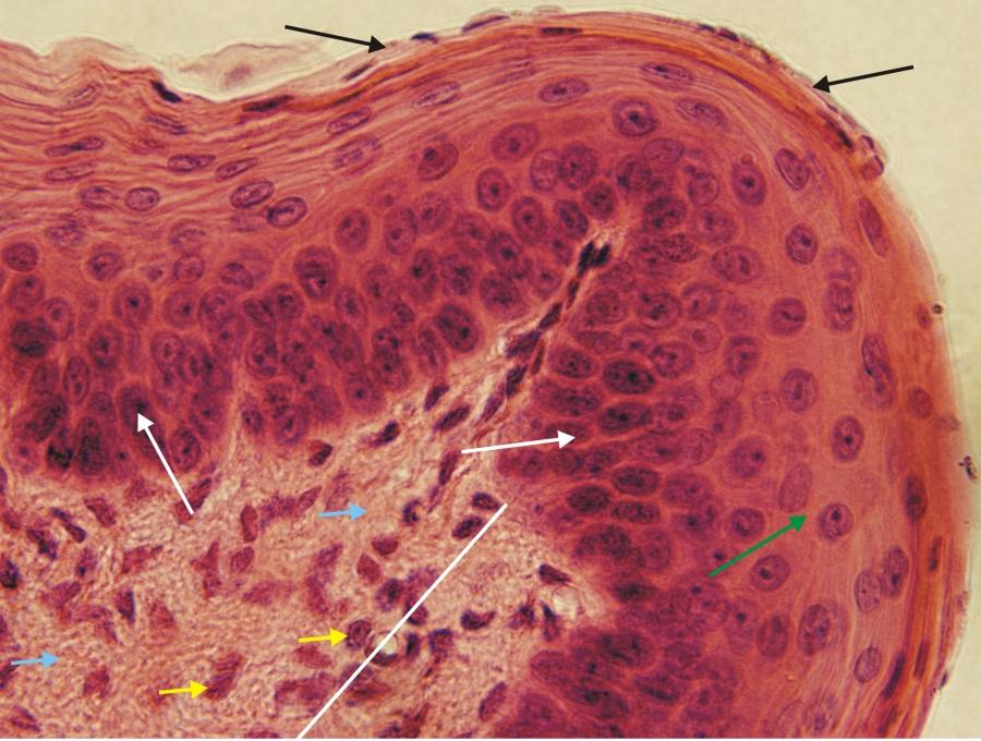 szálas kötőszövet-sejtek regenerálása