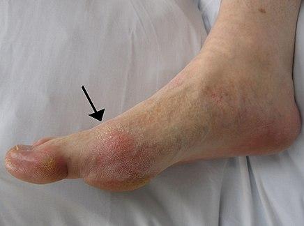 az egyik láb ízületeinek trombózisa vagy ízületi gyulladása