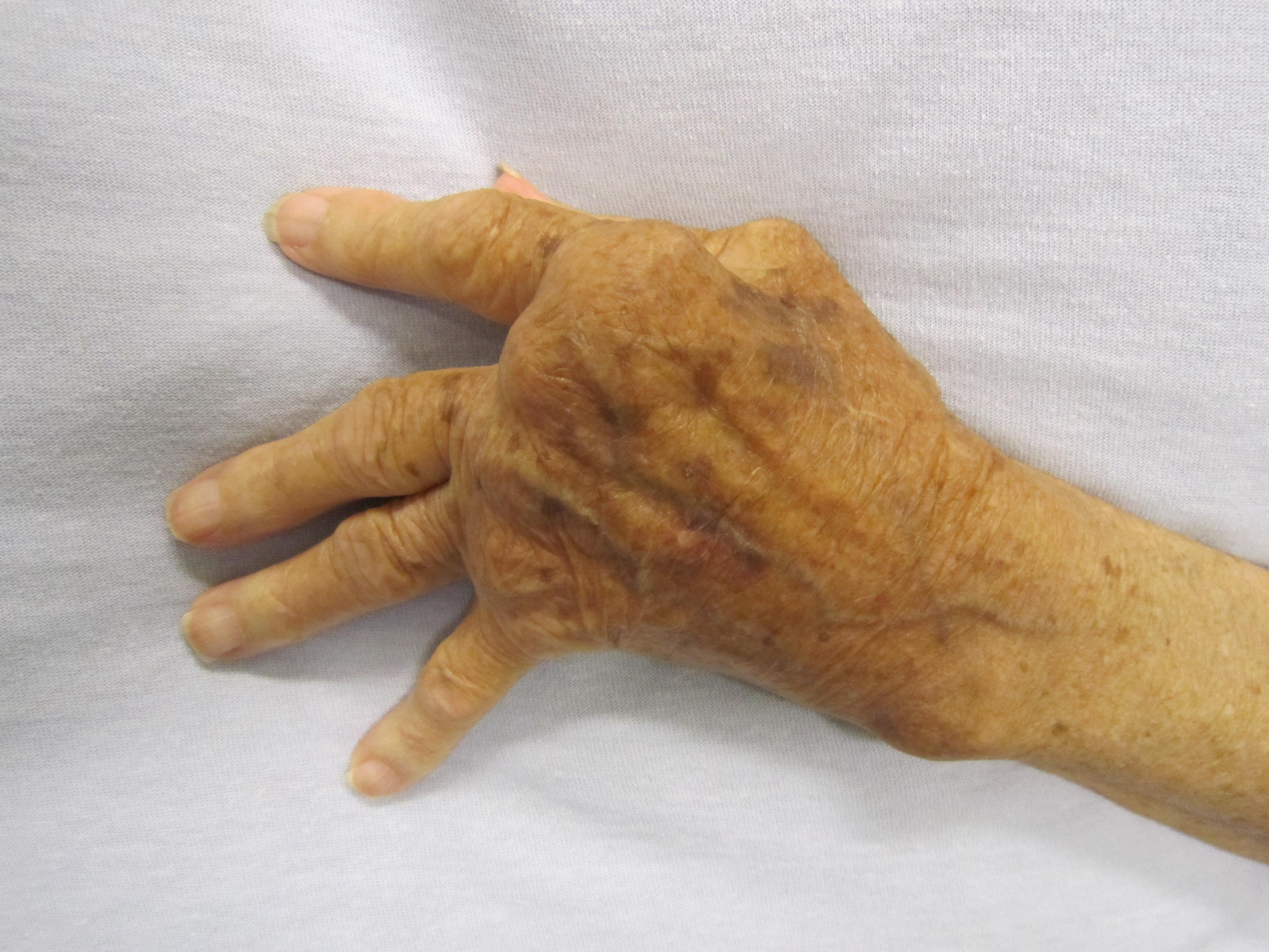 ízületi gyulladás az egyik ujján)