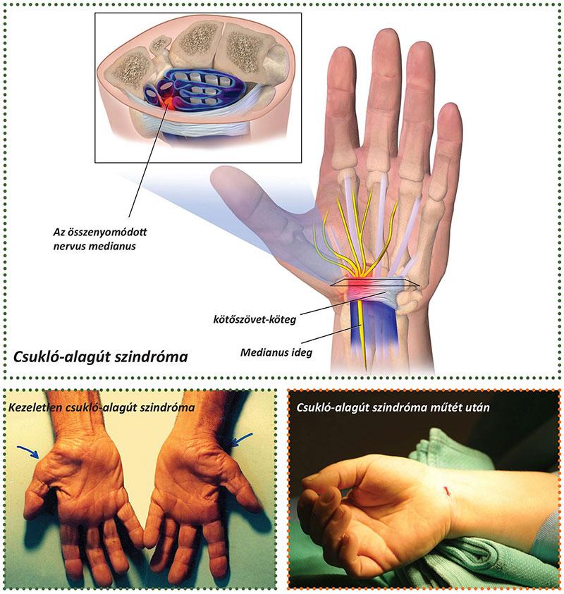 találat után az ujj ízülete fáj