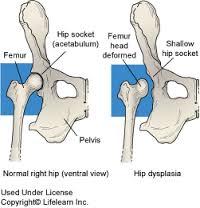 csípő dysplasia otthoni kezelés)