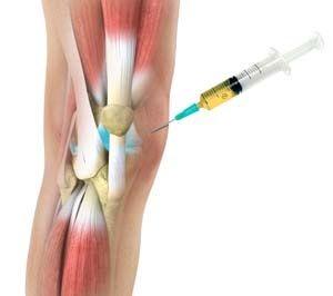 artrózis injekció