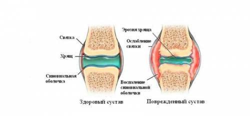 mi lehetetlen a térdízület artrózisával