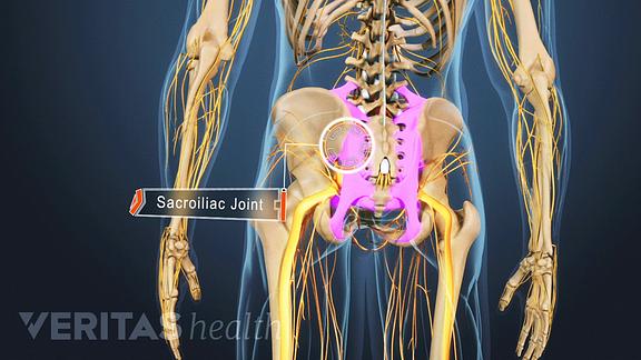 sacroiliac ízületi arthrosis