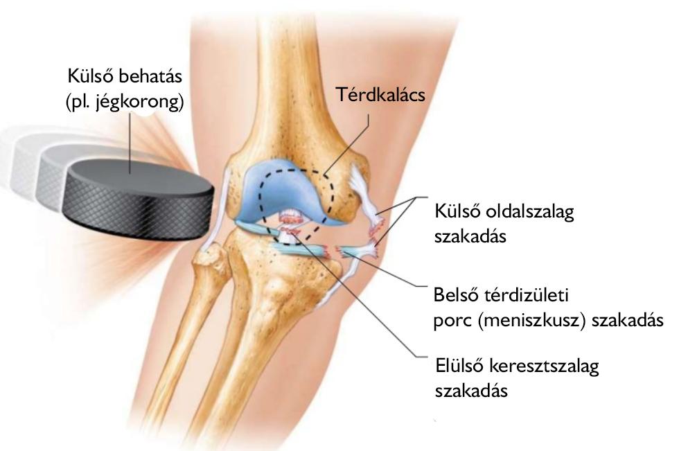 a térdízület belső meniszkusz synovitisának károsodása)