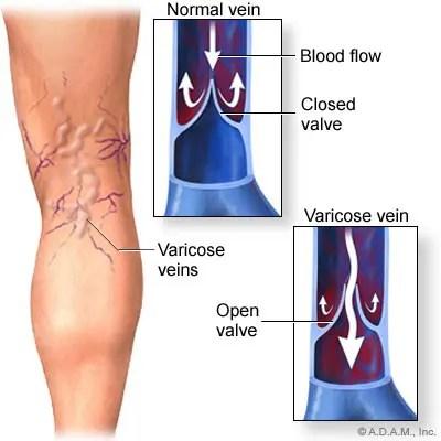 a térdízület helyreállítása a kötés megszakadása után ízületi fájdalom következményeinek blokádja