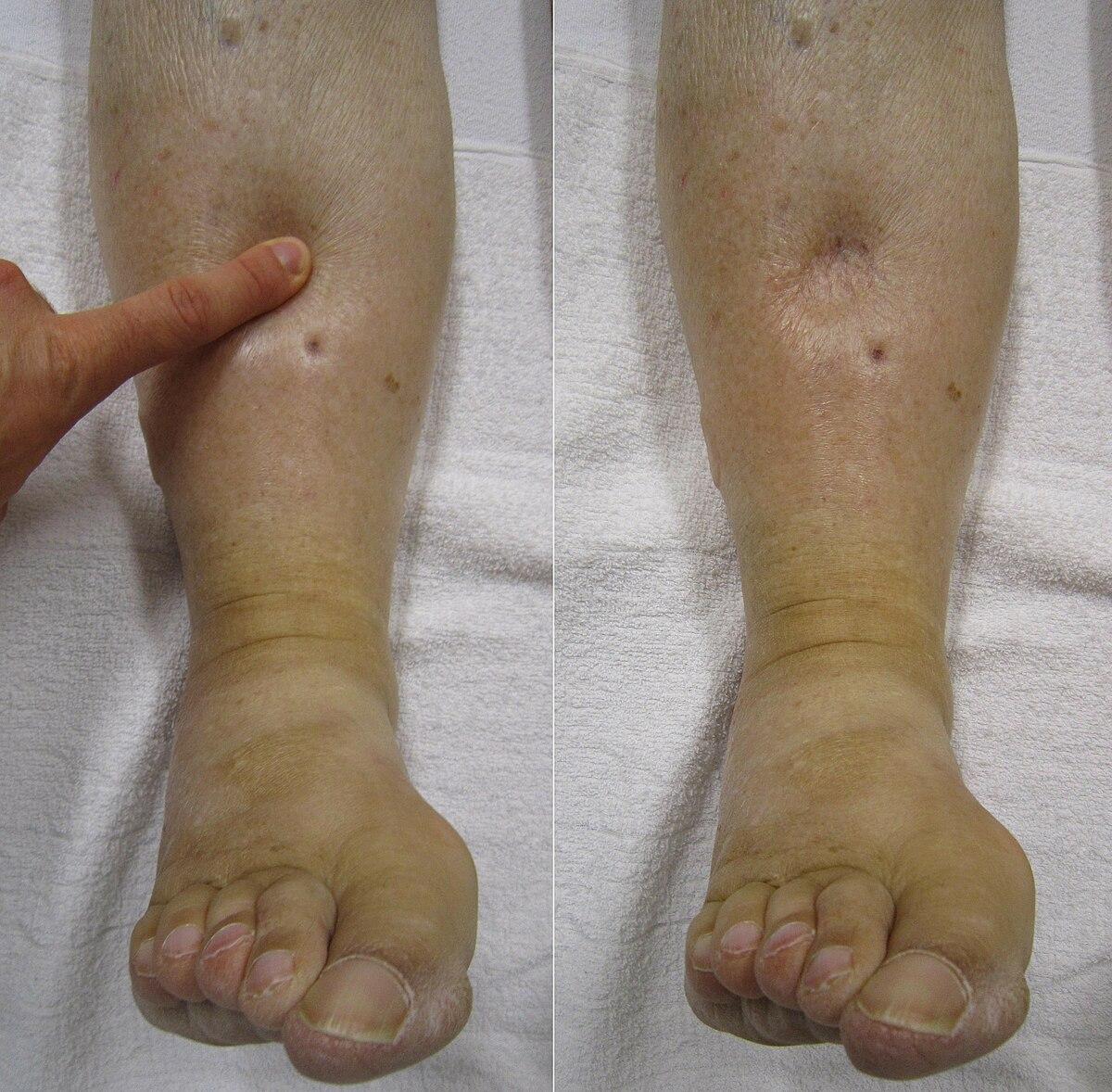 melegítő kenőcsök a lábak ízületeire