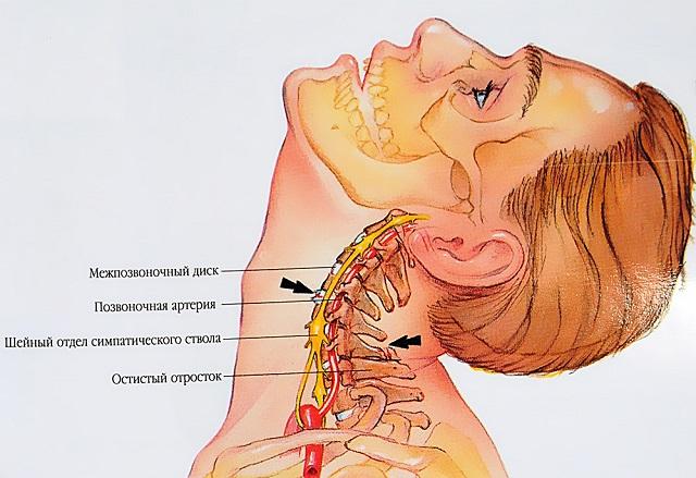nyaki osteochondrozis esetén melegítő kenőcsök is lehetnek