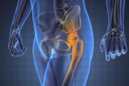 fájdalomcsillapítás a csípőízületekben