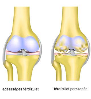 gerincvelő artrózis kezelés anyának ízületi fájdalma van