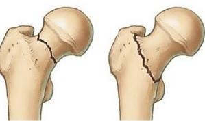 hogyan lehet kezelni az ujjak ízületeinek betegségeit térdízület artritisz prognózis kezelése