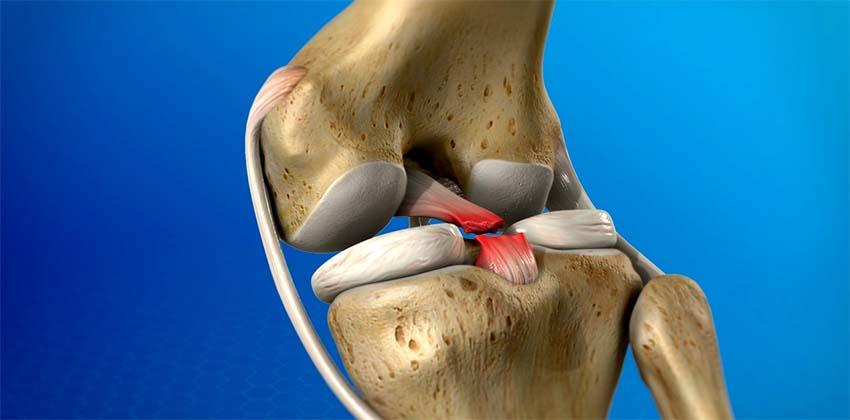 a térd oldalsó ízületeinek kezelése sérülés után