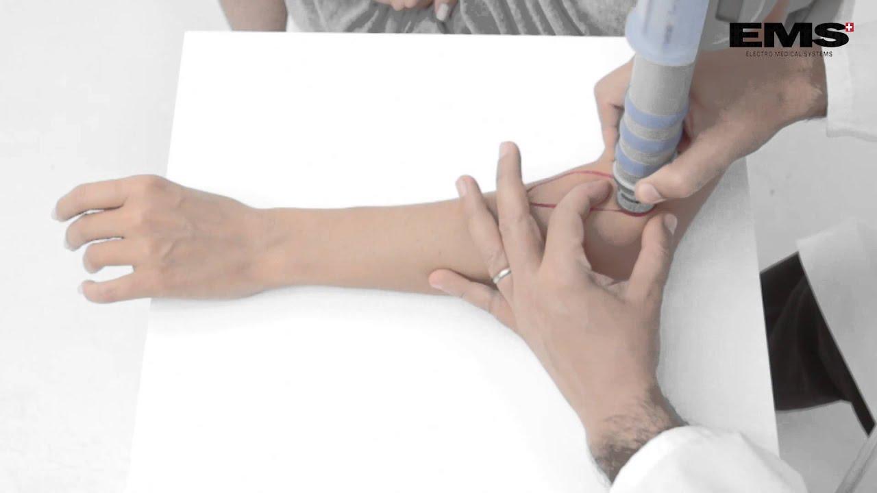 hogyan kezeljük a könyök csontritkulását