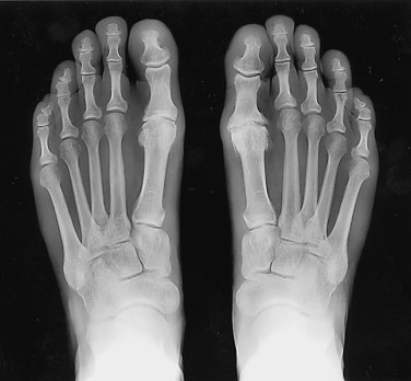 first mtp joint osteoarthritis icd 10)