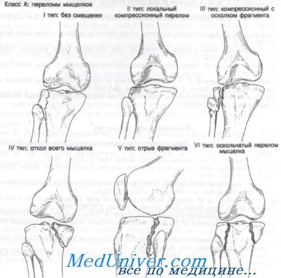 mi fáj az alsó lábszár ízületéről)