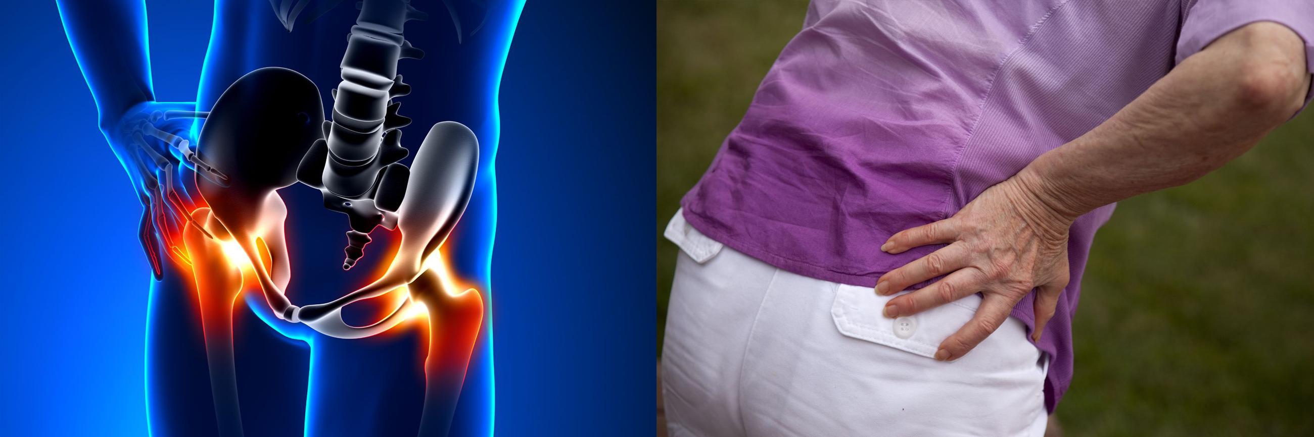 miért fáj a csípőízület járás közben