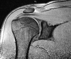 a vállízületek deformáló artrózisa)