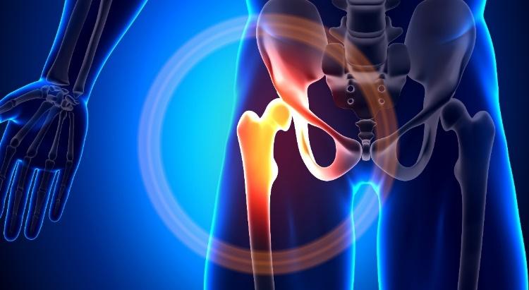 fájdalom a csípőízületben járás közben.)