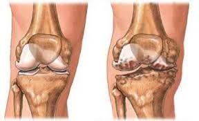 lehetséges-e teljesen gyógyítani a bokaízület artrózisát
