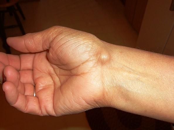 A kéz- és csuklóízületi gyulladás - leírása, kezelése