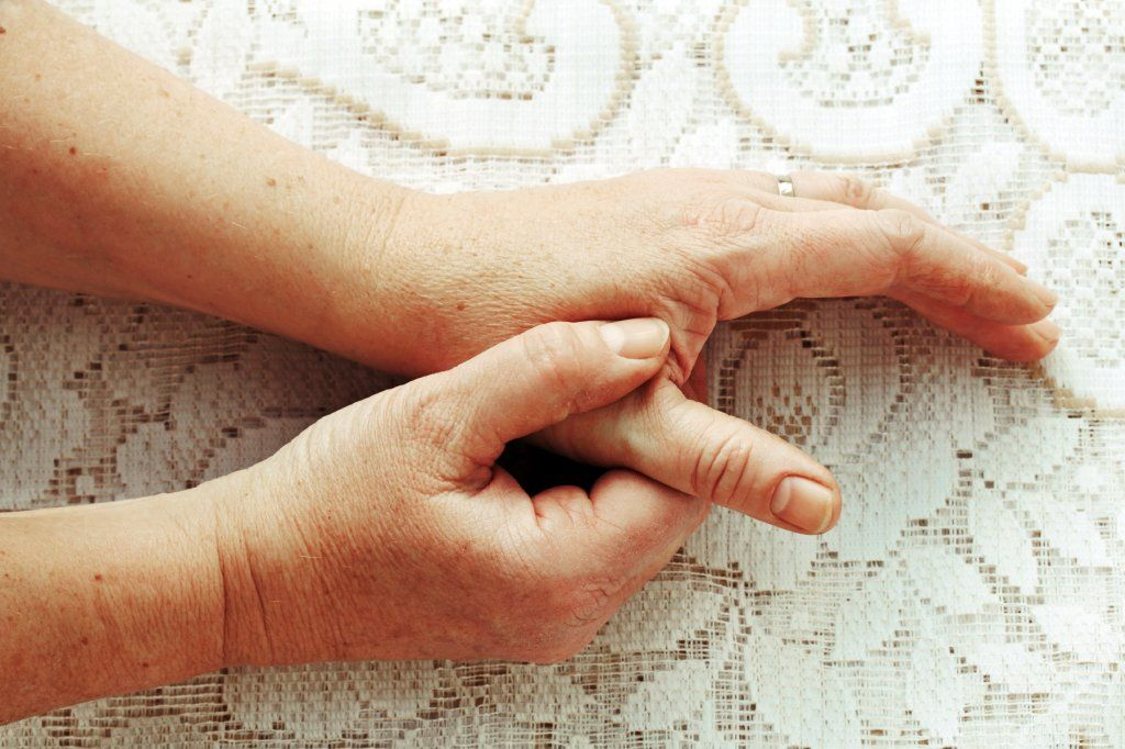 rheumatoid arthritis képek)