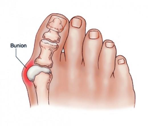 kis lábujj ízületi fájdalma