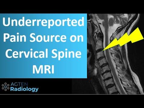 crovertebralis arthrosis c5 kezelés ízületi fájdalom fokozódásával