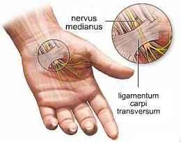rheumatoid arthritis ujj alakja)