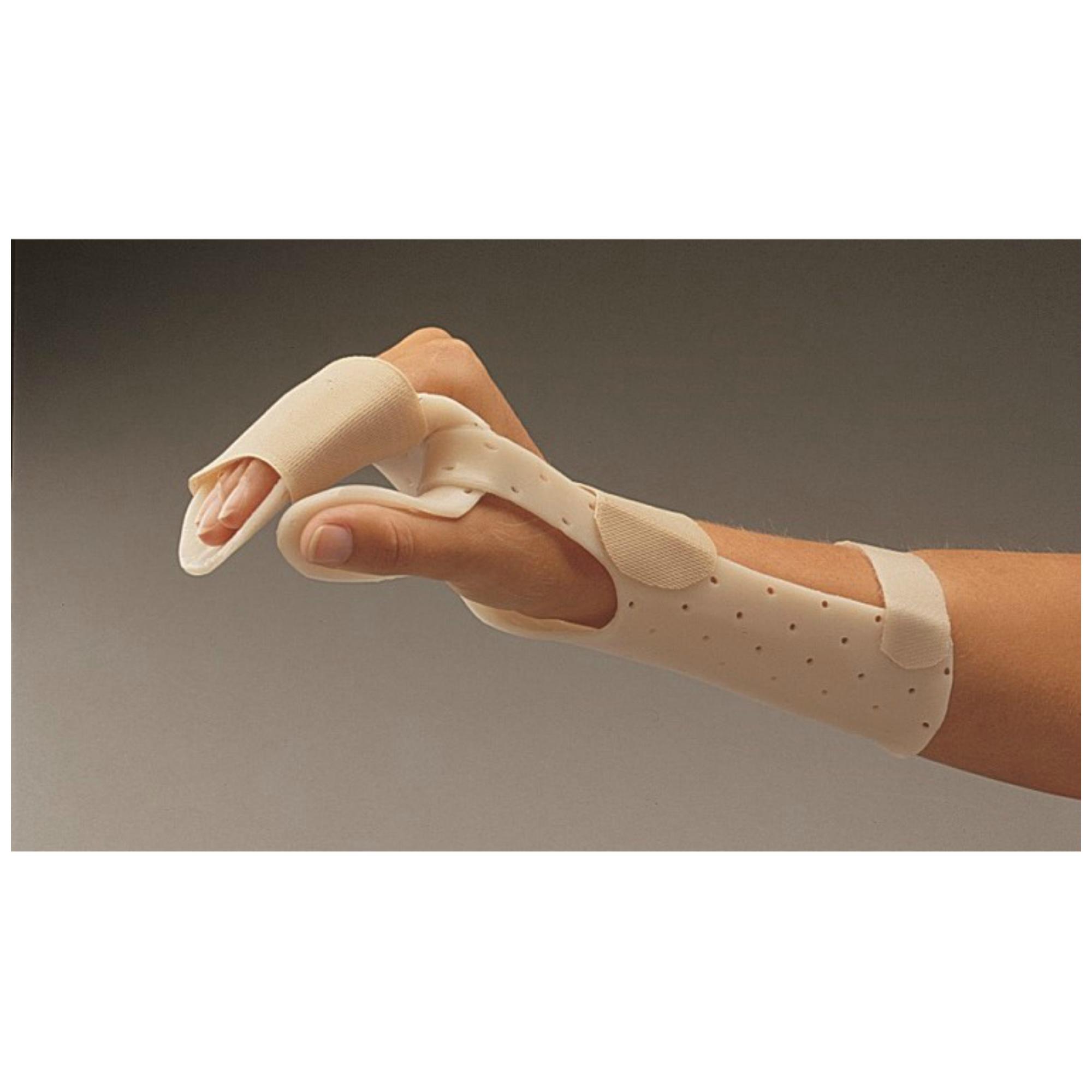 rheumatoid arthritis csuklóízület)