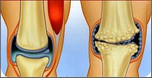 a vállízület károsodása az egyenetlen rudakon térdízület kapszula károsodása