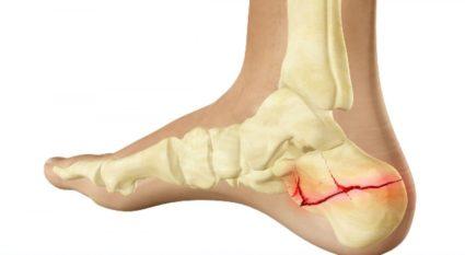 a bokaízület deformáló artrózisa 1 fokos kezelés)