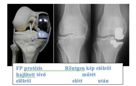 meniszcopathia térd artrosis)