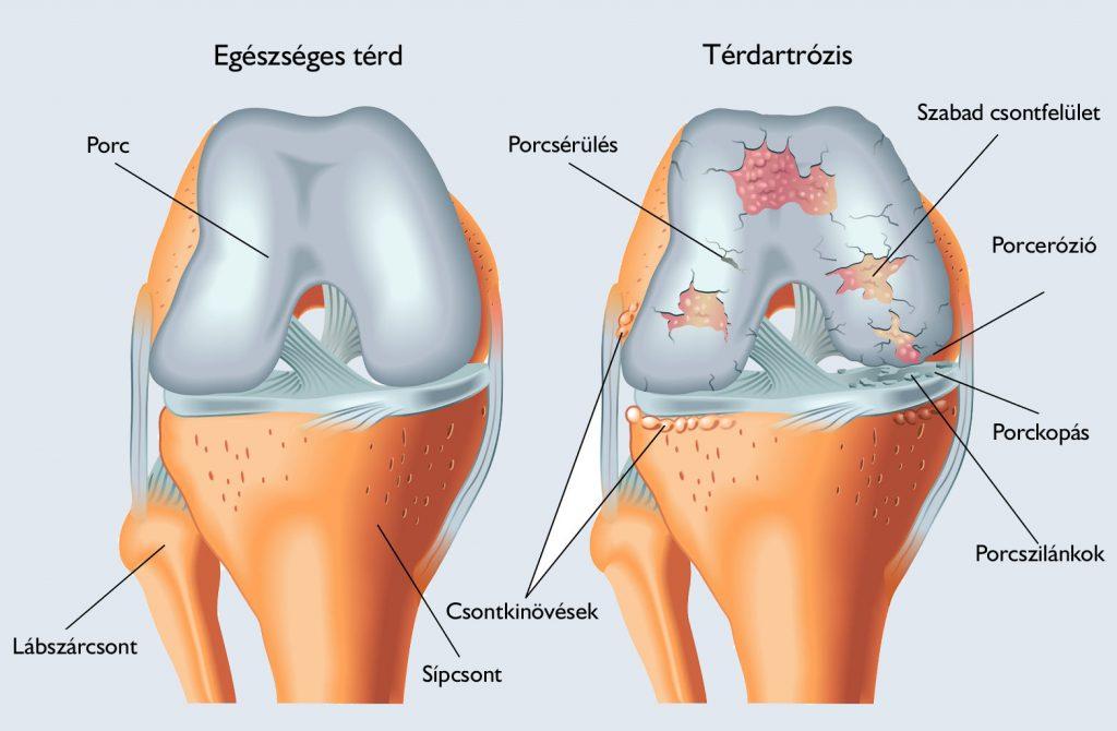 só a térd artrózisának kezelésében)
