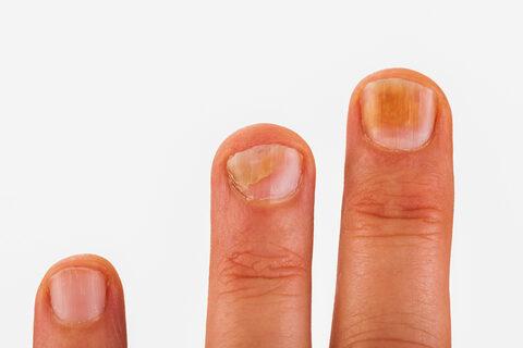 Rheumatoid arthritis - seovizsgalat.hu