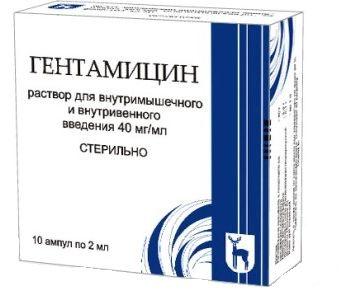 csípőízület trochanterikus bursitisének kezelése