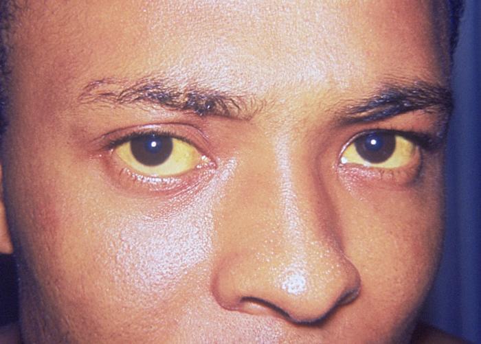 milyen ízületi fájdalom a hepatitis c-vel)