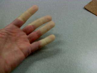 ujjak együttes kezelése)