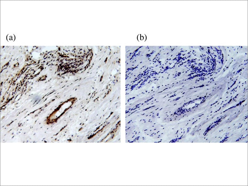 juvenile rheumatoid arthritis treatment medscape