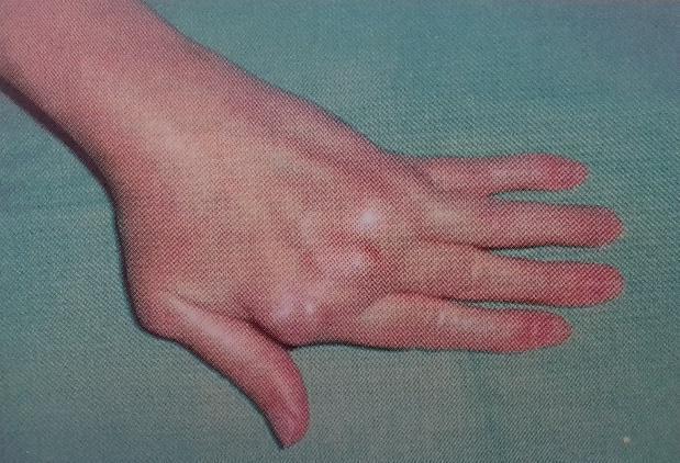 fájdalom az ujj interfalangeális ízületében)