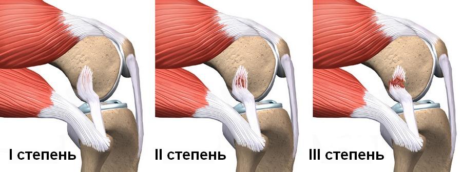 a bal térdízület oldalsó ínszalagjának károsodása)