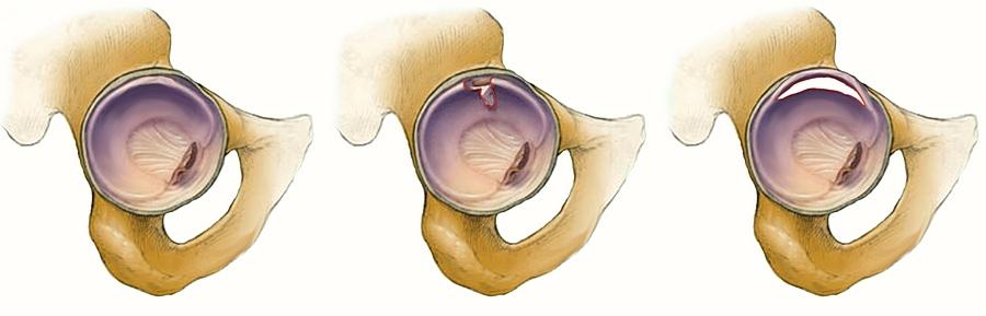 a csípőízület fájdalmainak kezelése a kezek ízületeinek betegségei állandó hipotermiával